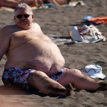 Some of the More Unusual Causes of Obesity